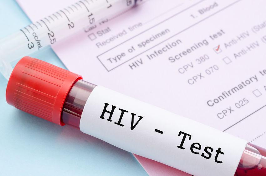 HIV testing Washington DC, free HIV testing in DC