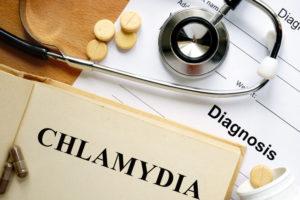same day chlamydia test, immediate chlamydia test results