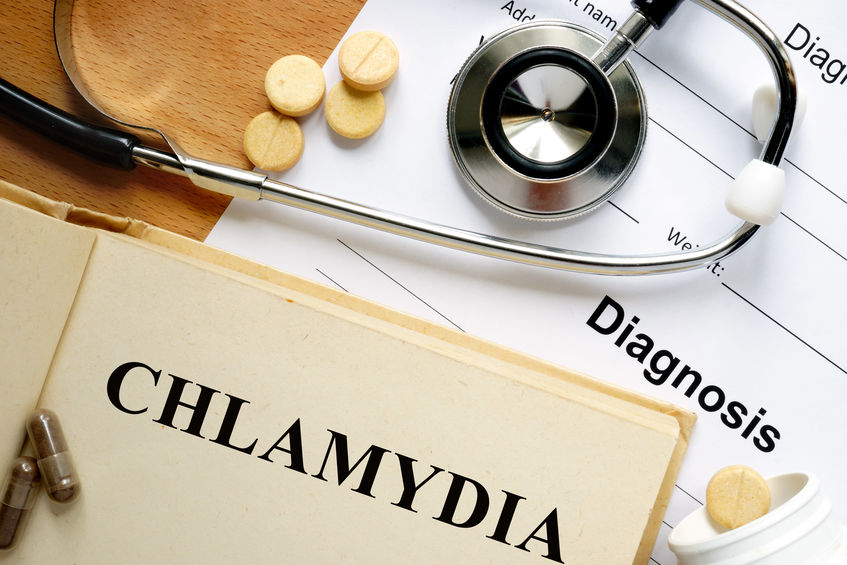 same day chlamydia test, immediate chlamydia test results